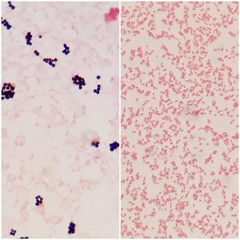 Smear of gram positive bacteria on the left and gram negative bacteria on the right, under 100X light microscope.