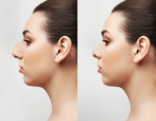Rhinoplasty Stock Photos And Royalty Free Images Vectors And Illustrations Adobe Stock
