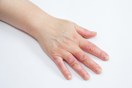 hand with second degree burns