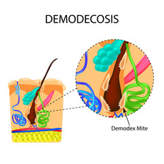 The structure of the hair. Sebaceous gland. Sweat gland. Introduction of demodex mite. Demodecosis. Infographics. Vector illustration on isolated background