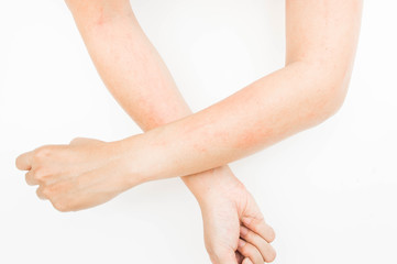 Rash allergy from touching arms ,eczema, Dermatitis