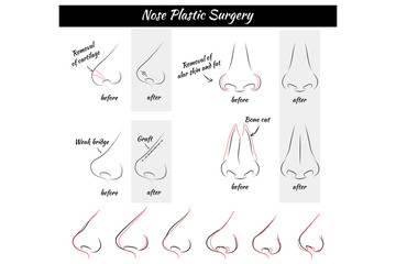 Plastic Surgery. Nose. Vector illustration. Nose Templates. Set of Noses.