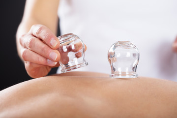 Therapist Giving Cupping Treatment On Back