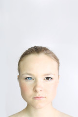 Portrait of Woman With Two Different Colored Eyes - Heterochromia