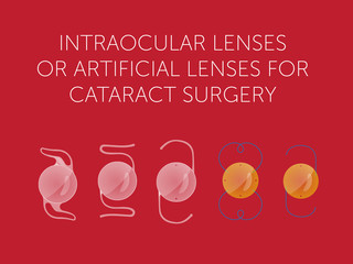 Varieties of intraocular lenses