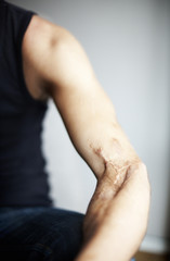 Cropped image of man with healed wound on hand