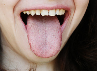 Attractive girl showing a healthy tongue
