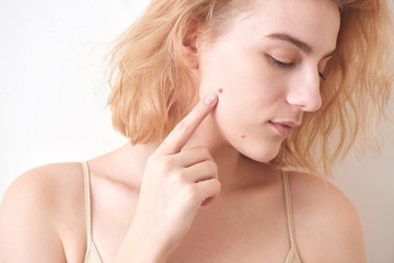 A girl with a mole on her face on white background