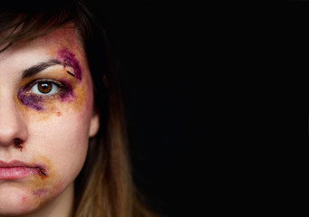beatings Female femsub facial