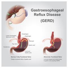 gastro reflux