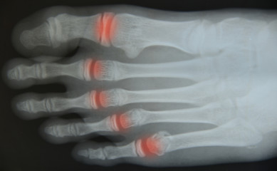 Close up foot  x-ray