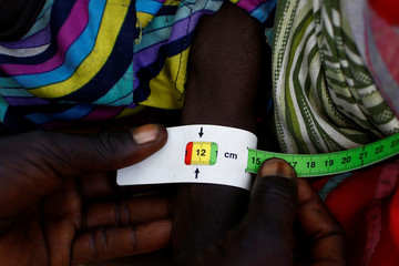 A child is checked for signs of malnutrition by a United Nations International Children's Emergency Fund health in Thonyor