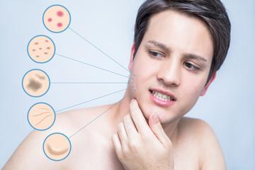 men's skin trouble. pimple, freckle, spot, wrinkle, saggy.