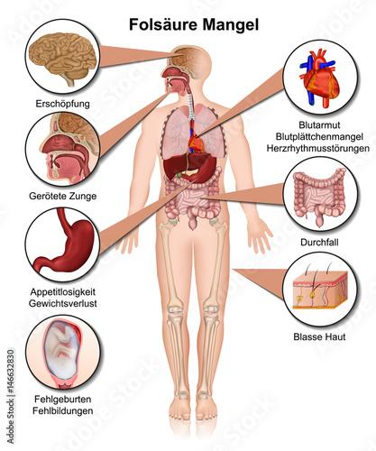 Vitamin B7 Mangel Anzeichen Und Symptome, Vektor Illustration, Biotin
