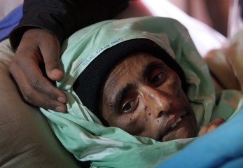 Kashmiri earthquake survivor Naqsha Bibi lies in a bed in a field hospital in Muzaffarabad
