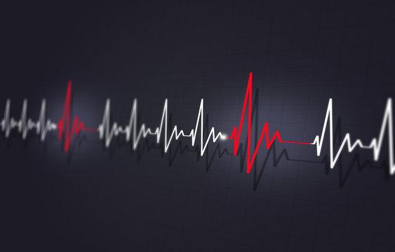Heart Disease Arrythmia