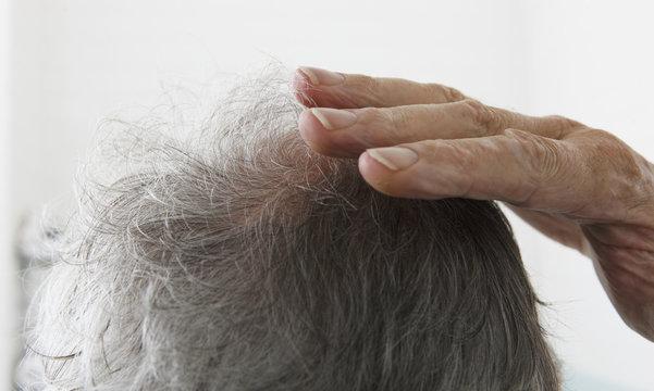 Senior man touching bald spot