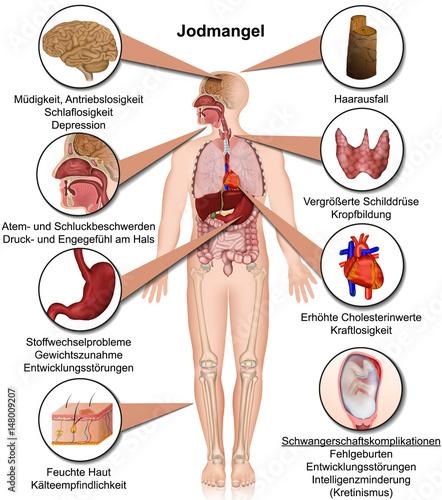 Jodmangel Symptome im menschlichen Körper, Infografik vektor ...