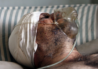 A man injured in a market car bomb attack lies in a hospital in Baghdad's Sadr city