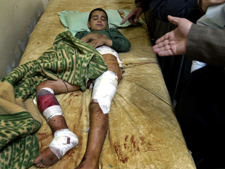 A IRAQI BOY, WOUNDED IN LAST NIGHT'S FIREFIGHT, LIES IN A HOSPITAL INSAMARRA.