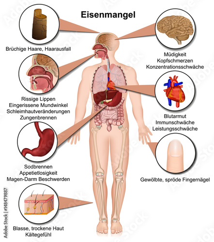 Eisenmangel Symptome Des Menschlichen Körpers, Infografik Vektor  Illustration