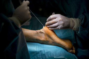 Surgeons doing an achilles tendon surgery in hospital