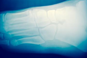 Close up foot bone