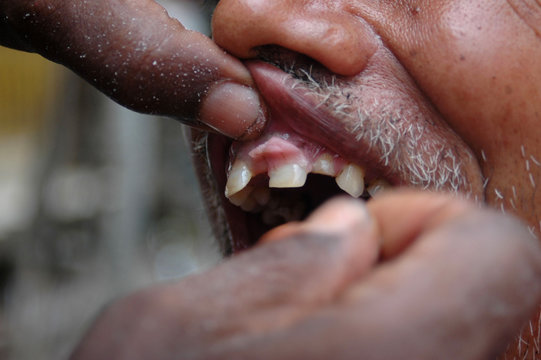Ramjee Sao fixes denture on a patient at his roadside clinic in Varanasi
