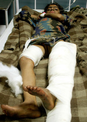 Indian girl rests inside a hospital in Jammu