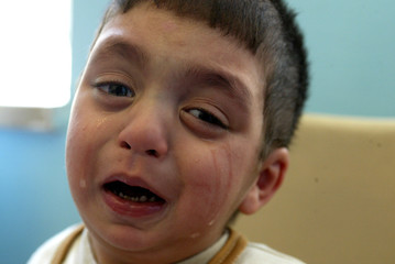 Mustafa an Iraqi child with cleft palate cries before he is taken into the operation room in a ...