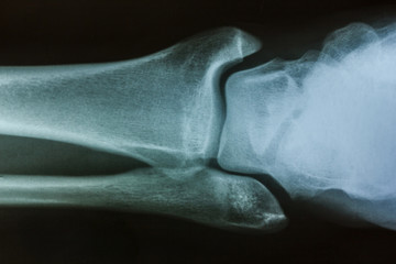 Male ankle x-ray background.
