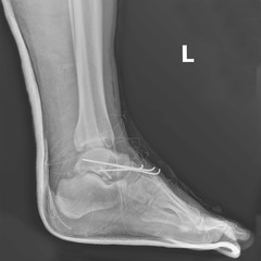 X-ray postoperative with medical screws installed and nails in the foot.