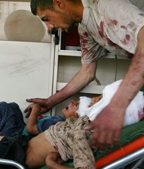 A man comforts two young children who were injured by a suicide car bomb explosion in Baghdad.