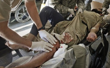 US Army medical personnel treat a wounded Afghan soldier at Forward Operating Base Bostick in eastern Afghanistan