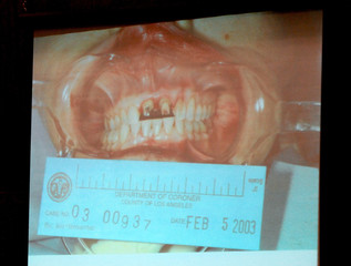 A picture showing the damaged teeth of Lana Clarkson is shown as evidence during music producer Phil Spector's murder trial at Los Angeles Superior Court