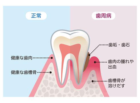 健康な歯と歯周病の歯 比較