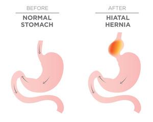Hiatus Hernia Stomach Image