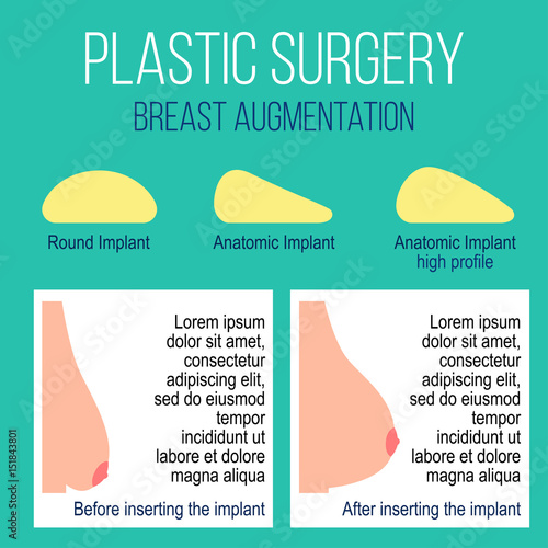 Different types of breast augmentation