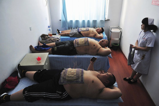 Patients undergo fire treatment, a traditional Chinese remedy for obesity, at a weight loss centre in Changchun