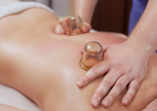 The masseur makes massage with jars on the back and thighs of the patient.
