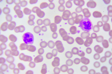 Neutrophil cell (white blood cell) in blood smear, analyze by microscope