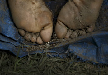 The feet of a deceased landslide victim is pictured after being retrieved form the area at Lumle village