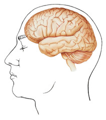 A normal brain superimposed on a line drawing of a male head, side view. Shown are the skull, cerebrum, cerebellum, and brain stem..