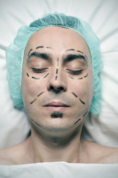 man about to have a plastic surgery
