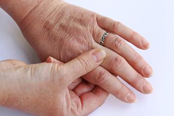 Blasen und Warzen auf den Fingern