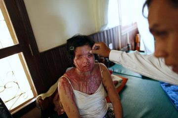 """Phallynai, 28, an acid attack victim is checked by a doctor at a secure shelter run by non-profit organisation """"Cambodia Acid Survivors Charity"""" outside Phnom Penh"""