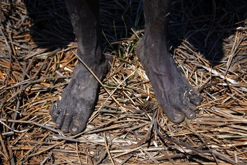 The bare feet of Australian Aboriginal hunter Robert Gaykamangu of the Yolngu people can be seen as he stands next to a billabong near the 'out station' of Ngangalala, on the outksirts of the community of Ramingining in East Arnhem Land