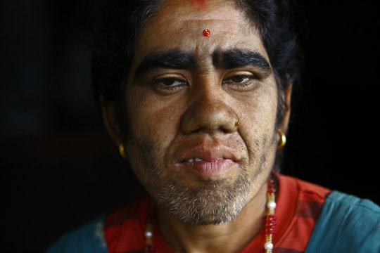 Devi Budhathoki poses for a photograph before undergoing laser hair removal treatment in Karay, Dolkha District