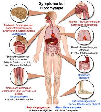 Symptome bei Fibromyalgie