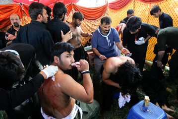 Men's backs are stitched up after self flagellation during the Shi'ite Muharram procession in Islamabad